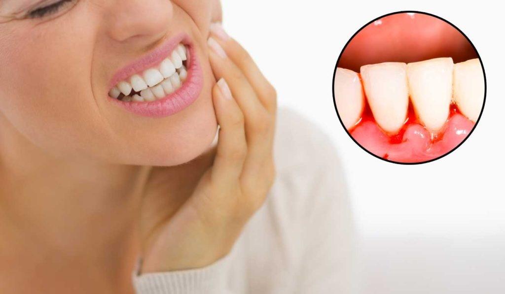 Chảy máu chân răng và những vấn đề liên quan Cách trị chảy máu chân răng