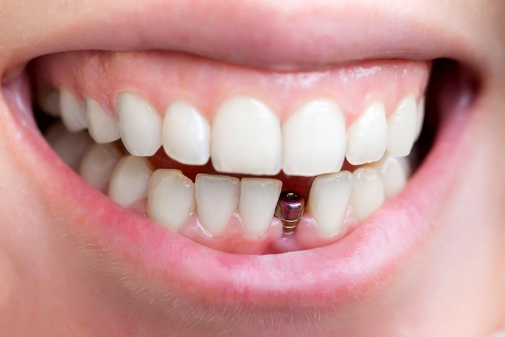 Trồng răng Implant và những điều cần biết