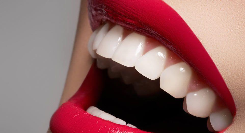 Răng sứ emax có tốt không và tác dụng răng emax